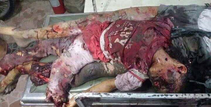 New massacre in Taiz as coup militias shell residential areas.