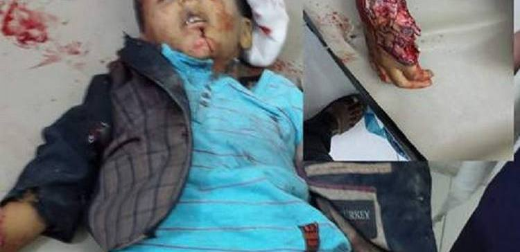 Yemen….. Rebels shelling killed 4 children in Taiz