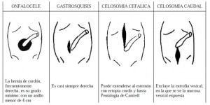 Abdominal wall defects  Congenital Malformations Browser
