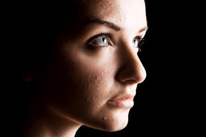 Acne, dermatitis, pimples and stress