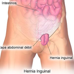 Hernias: natural tips for diet and treatment, prevention and post-operation