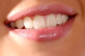 Sensitive teeth: causes and remedies to prevent and eradicate the problem