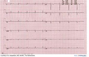 ECG In Congenital Heart Disease ECGpedia