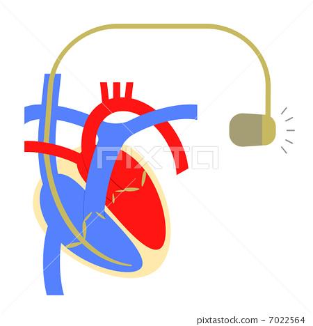 心臟起搏器-插圖素材 [7022564] - PIXTA圖庫