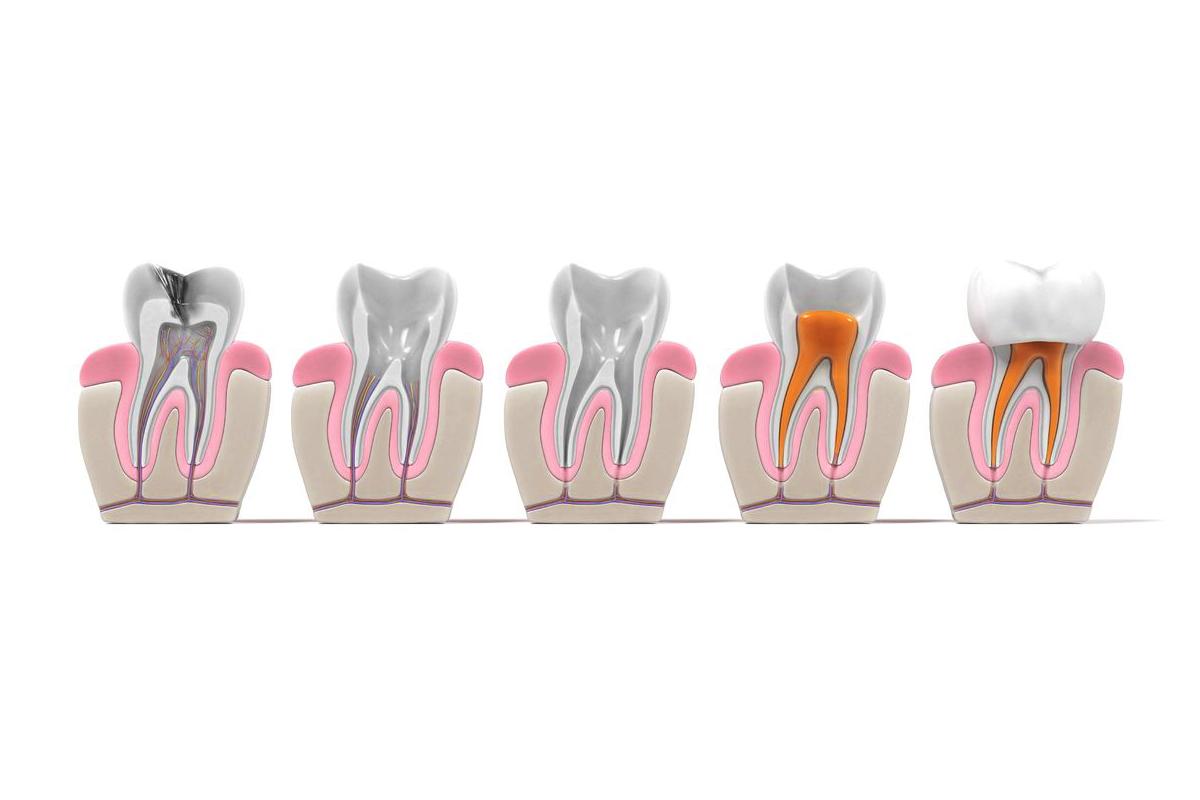 conservative-treatment-of-teeth-and-endodontics