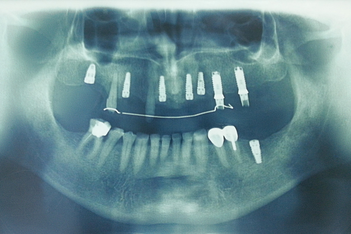 oral-surgery-and-implantology