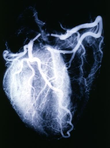 Angiogram  wikidoc