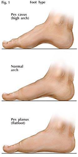Feet-types