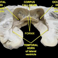 Right Lateral Brain Diagram Calamp Gps Wiring Ventricles