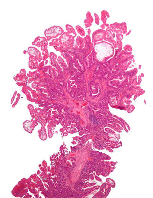 small resolution of micrograph of a peutz jeghers colonic polyp a type of hamartomatous polyp h e stain