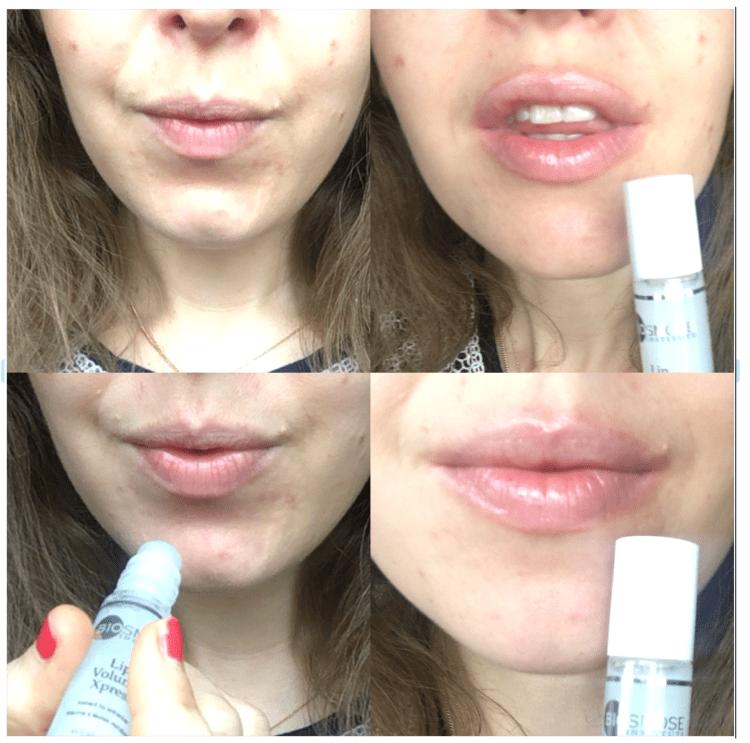 lip volume xpress Biosmose stick volume levre comme injection