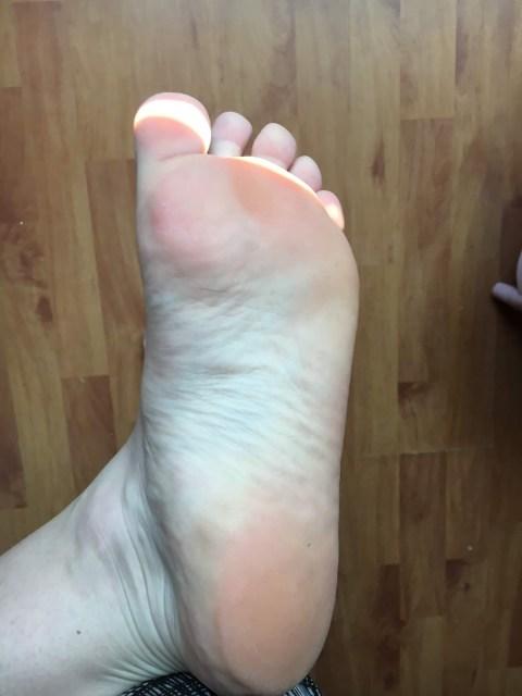 exfolier soin des pieds avec Dr Pierre Ricaud