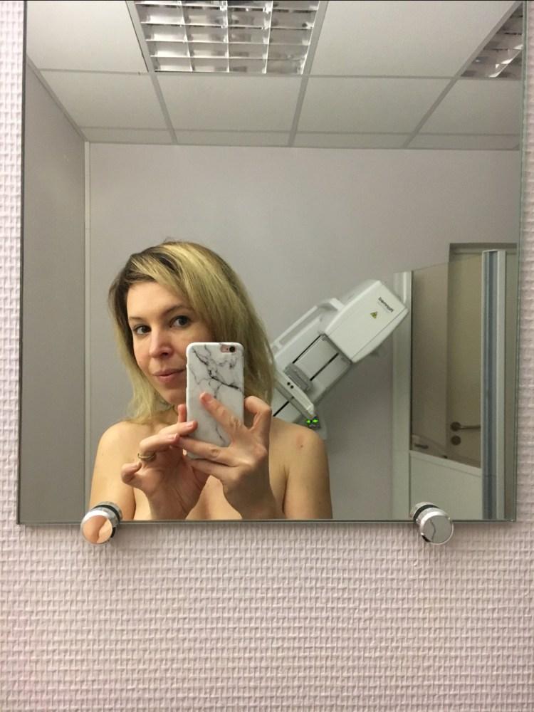 mammographie échographie des seins mon expérience