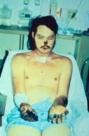 Síntomas de la peste bubónica