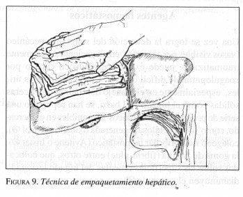 TRAUMA HEPÁTICO GRAVE, ESTRATEGIAS INTRAOPERATORIAS