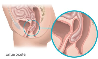 Enterocele Prolapse occurs when the small intestines protrudes into the vagina due to the weakening of the support tissue.