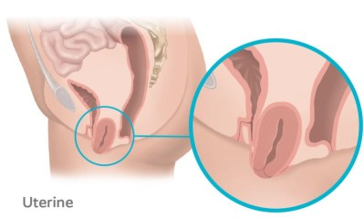 Uterine prolapse occurs when the top part of the vaginal wall loses support and the uterus drops into the vagina.