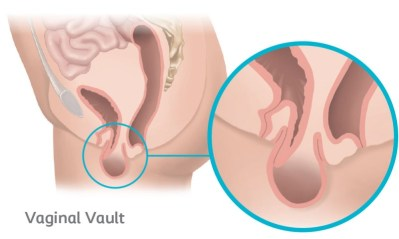 Vaginal vault prolapse occurs when the top part of the vaginal wall loses support and drops into the vagina.