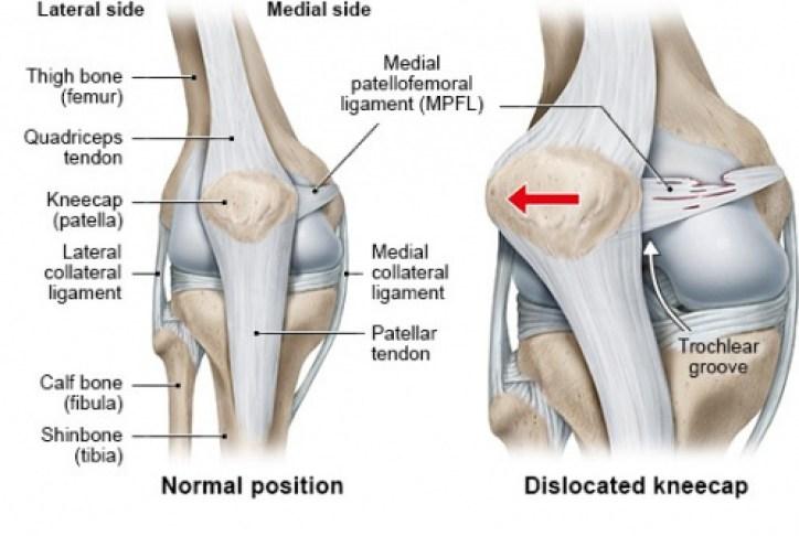 Inner Side Knee Pain