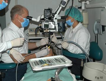 Intervento di Endodonzia chirurgica eseguito dal dott. Arnaldo Castellucci