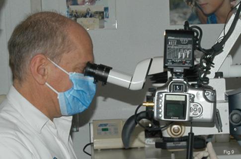 Dott. Arnaldo Castellucci al microscopio durante una procedura di ritrattamento endodontico