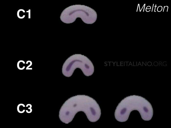 C-Shaped Canal Configuration in Mandibular Second Molar