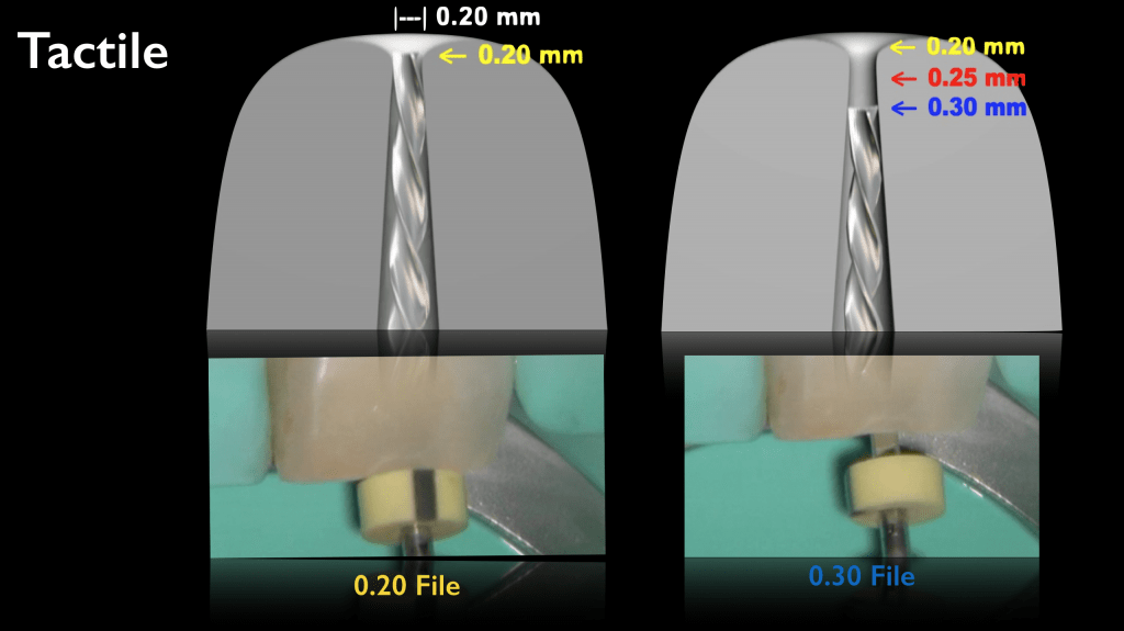 Apical Gauging: measuring the Control Zone