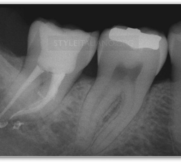 Decision Making in Endodontics