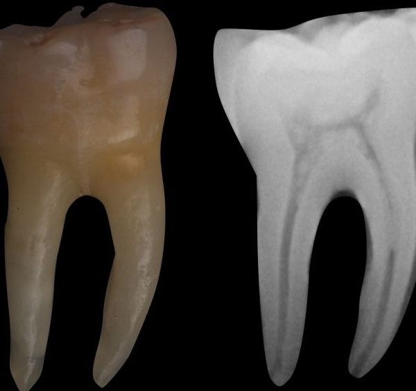 Mandibular Molars Mesial Root Canal, Part 1