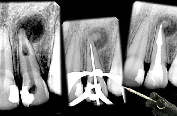 Management of Internal Root Resorption