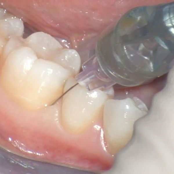 Single Tooth Anesthesia
