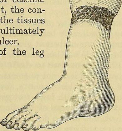 diabetic foot photo