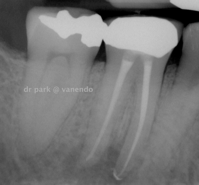 Tooth #4-6 post-op radiograph