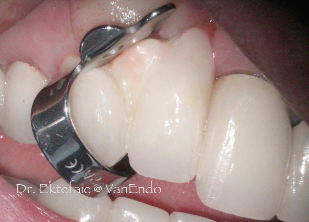 rubber dam clamp on a tooth