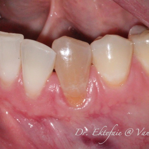 a discoloured tooth