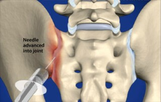 sacroileitis Infiltració articulació sacroilíaca