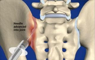 Sacrolitis Infiltración intra-articular de la articulación sacroilíaca