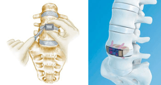 Anterior spine surgery