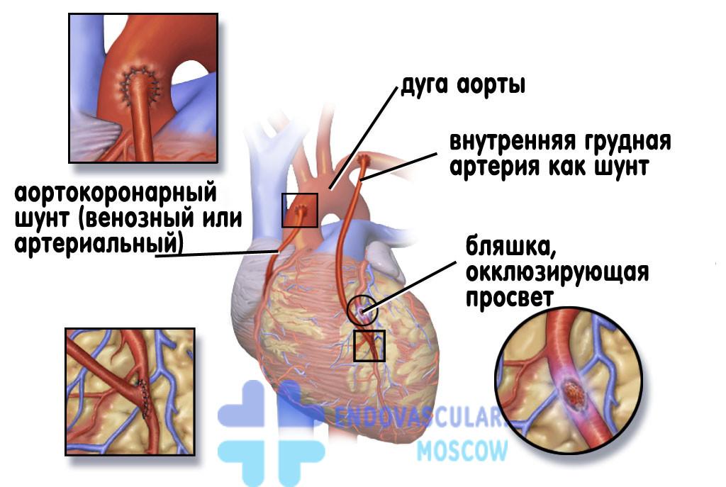 Ūmus bronchitas: kodas icb 10