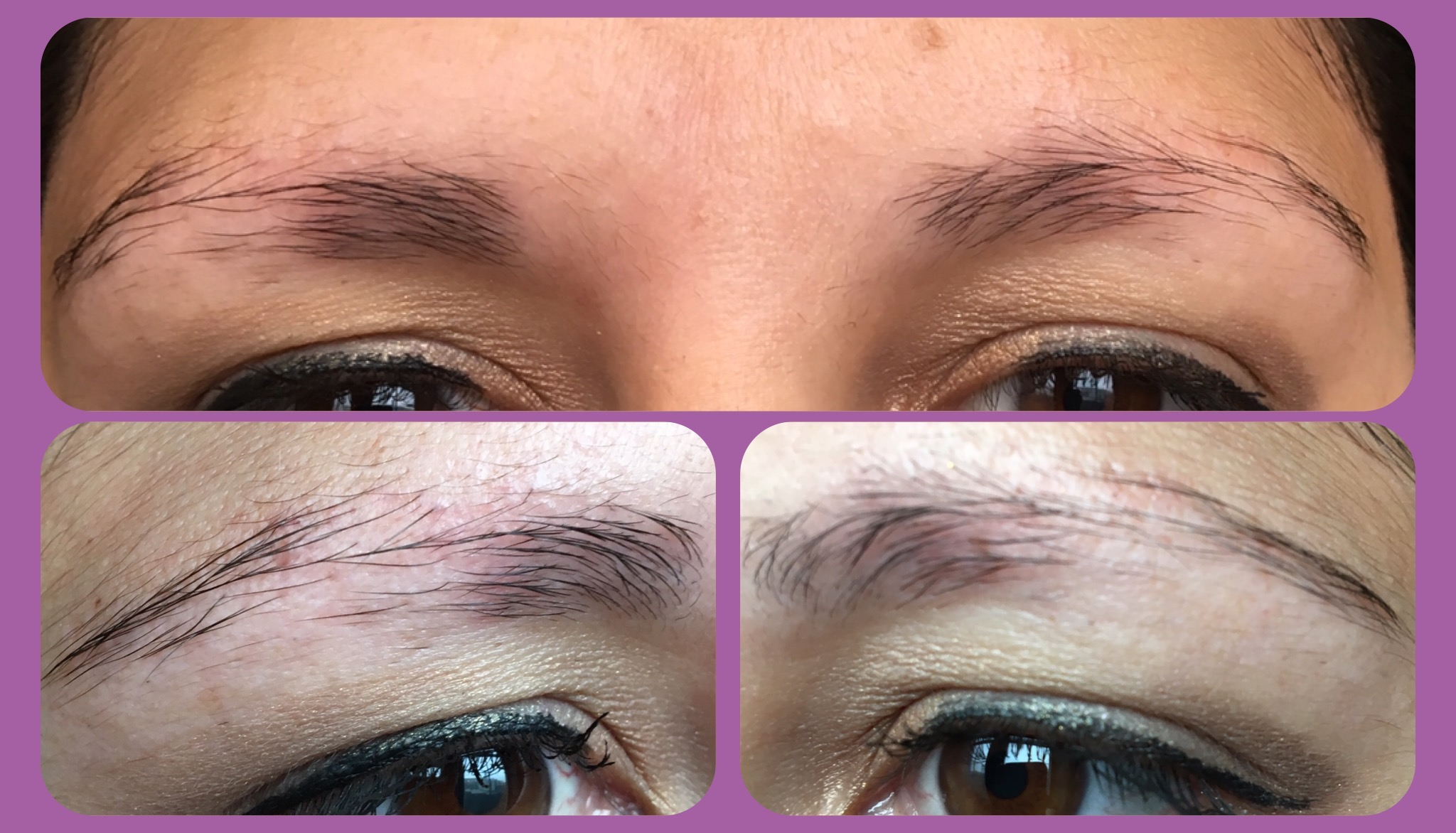 Micro Blading Brows For Thyroid Caused Eyebrow Hair Loss Enduring