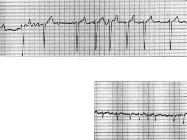Interpretando Arritmias Cardíacas