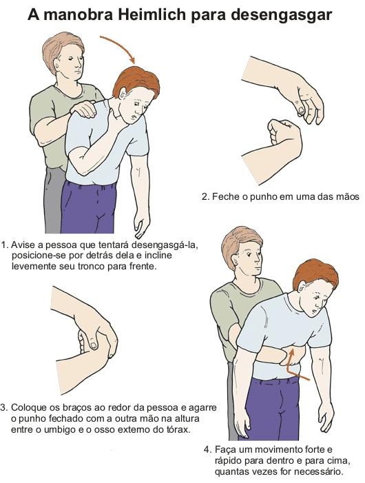 manobra-de-heimlich (2).png