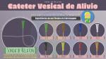 Cateter Vesical de Alívio