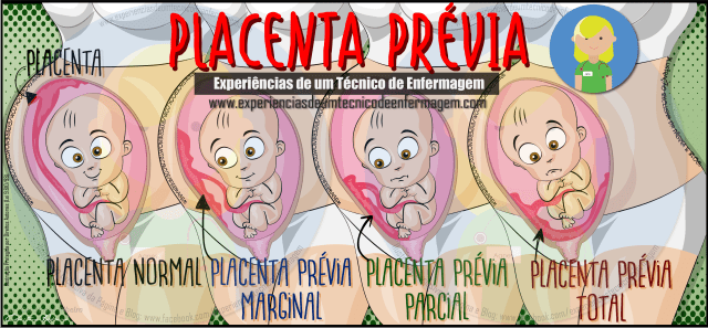 placentaprevia_Novo