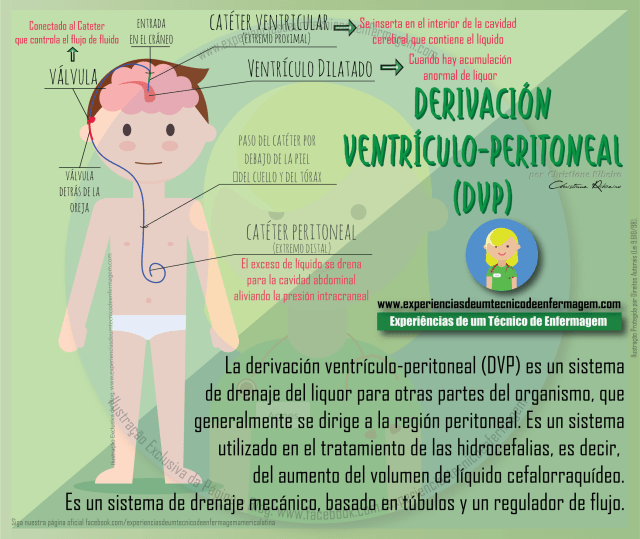 derivación ventrículo-peritoneal