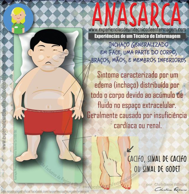 Anasarca