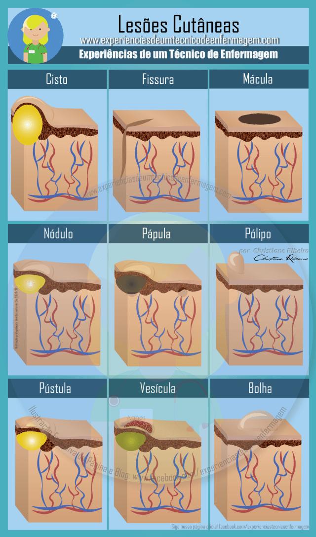 lesoes pele