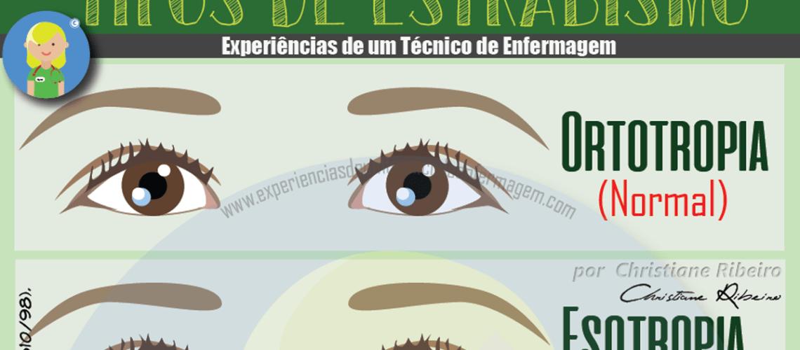 olhos inchados condição da tireóide
