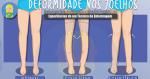 A Deformidade nos Joelhos: O Geno Valgo e o Geno Varo