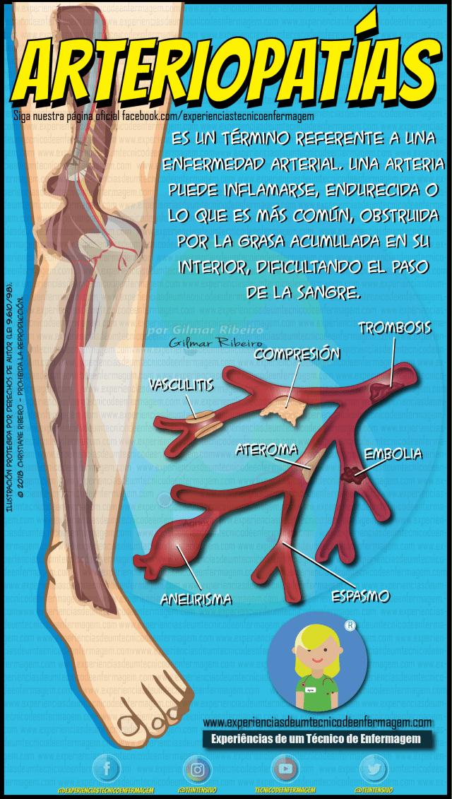 Arteriopatía